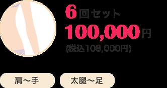 6回セット100,000円