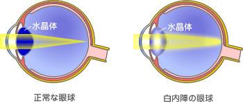 レーシック眼科の給湯室